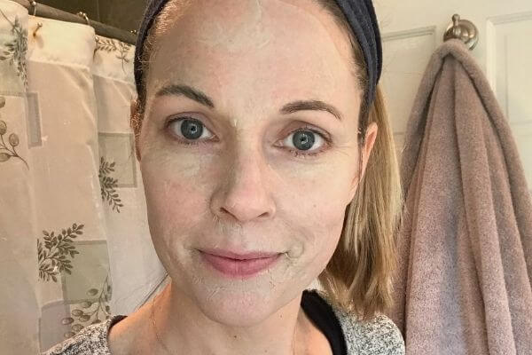 this is how you can get clear skin overnight